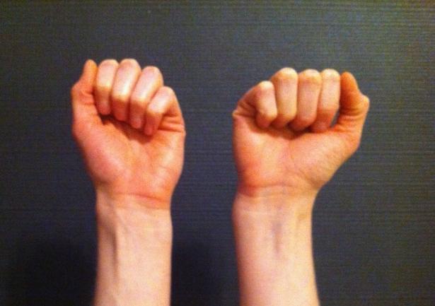 My cockeyed right wrist.